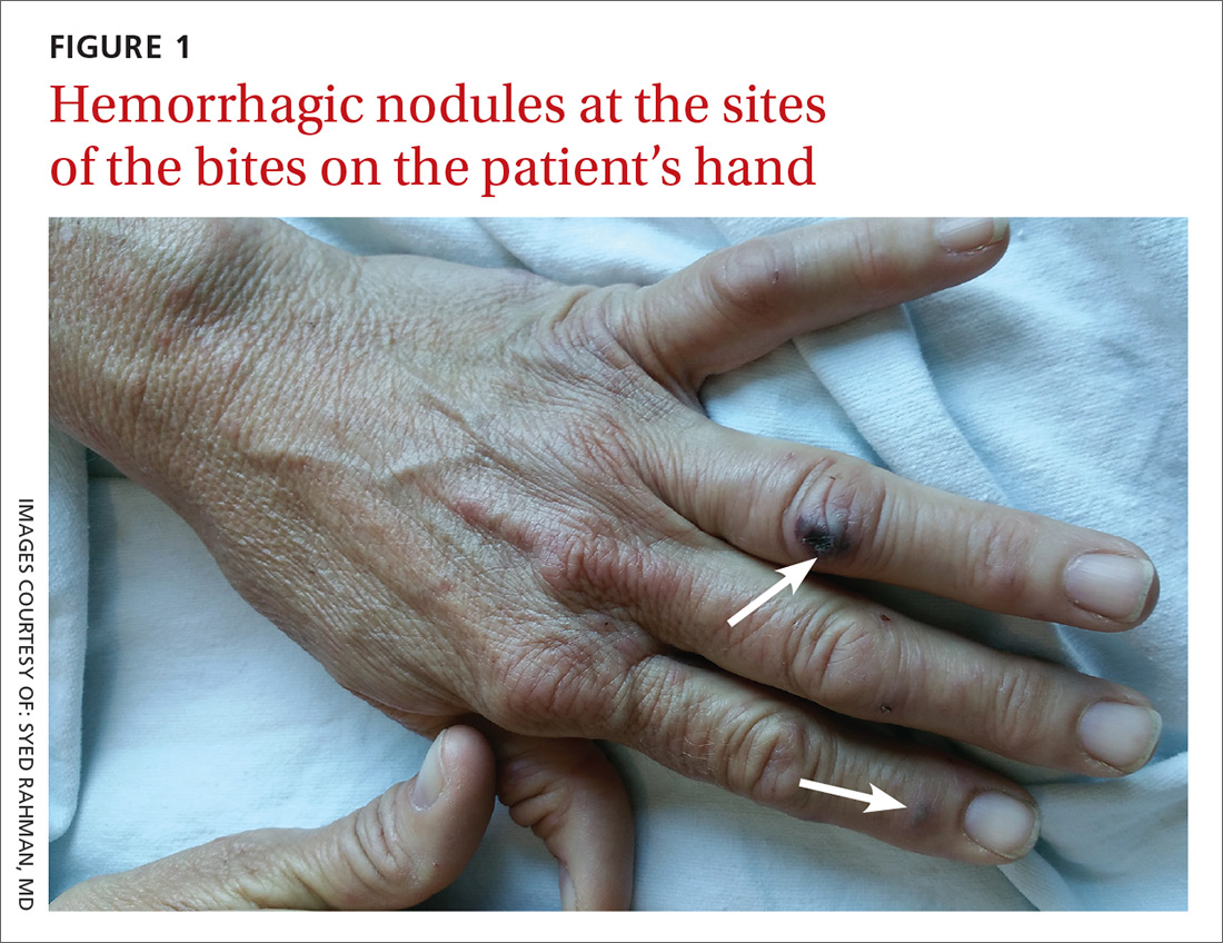 Hemorrhagic nodules at the sites of the bites on the patient's hand image