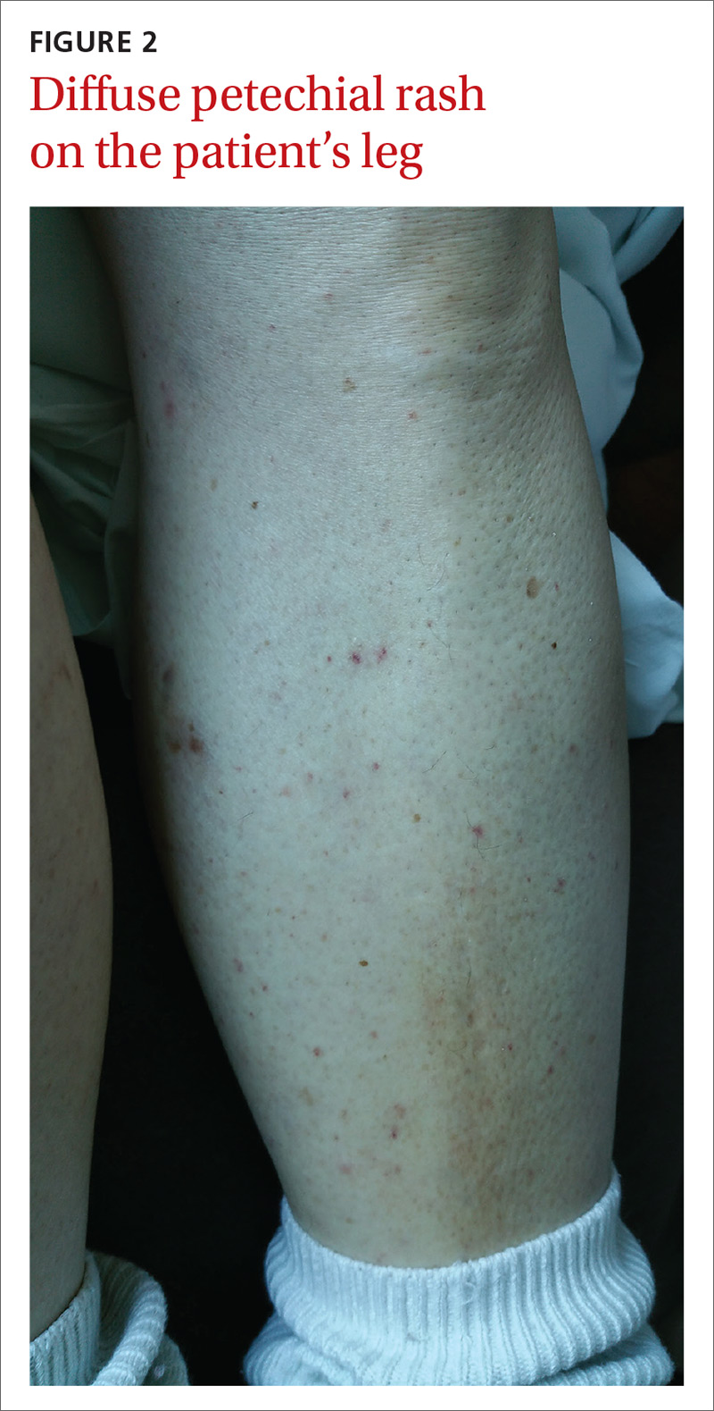 Diffuse petechial rash on the patient's leg image