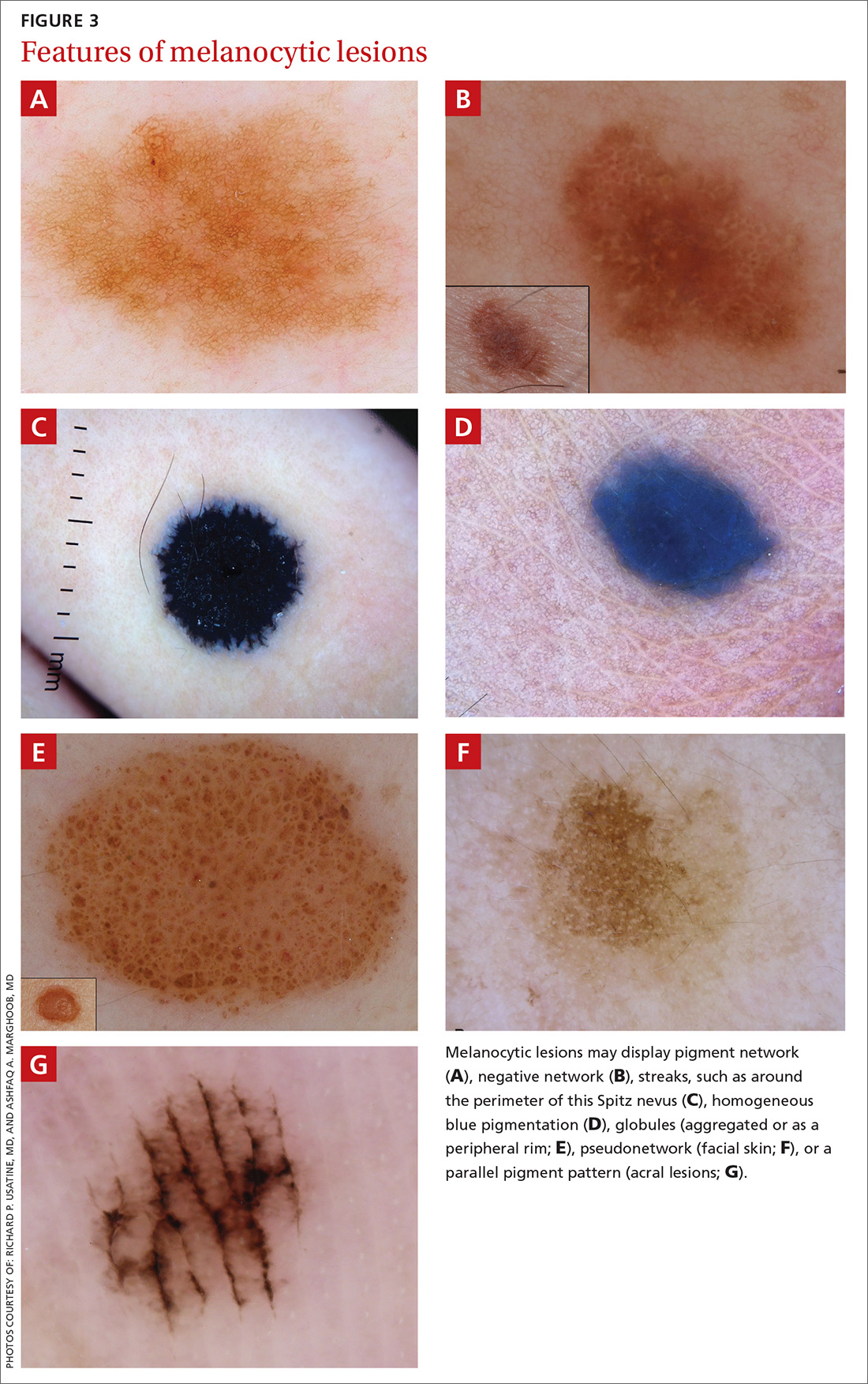 Features of melanocytic lesions