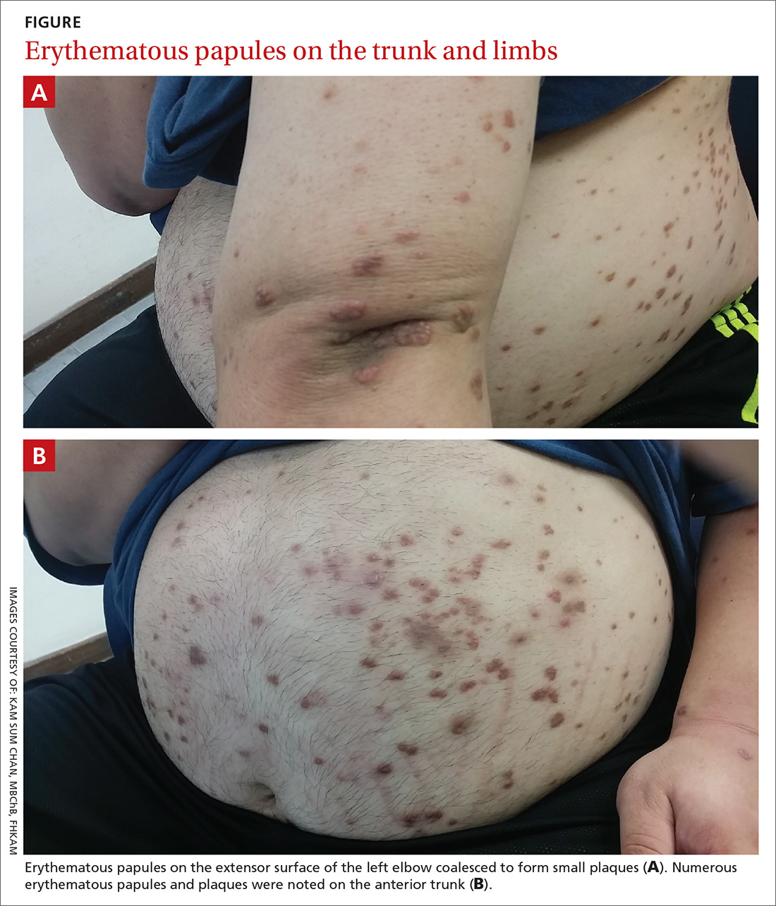 Erythematous papules on the trunk and limbs