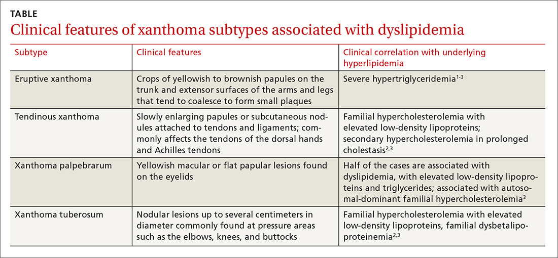 Clinical features of xanthoma subtypes associated with dyslipidemia