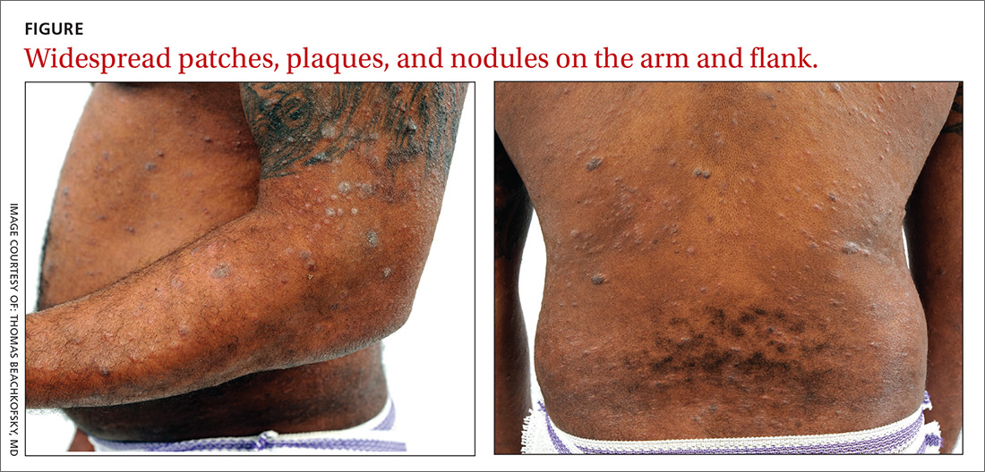 Widespread patches, plaques, and nodules on the arm and flank.