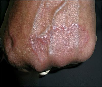 Raised lesion on hand