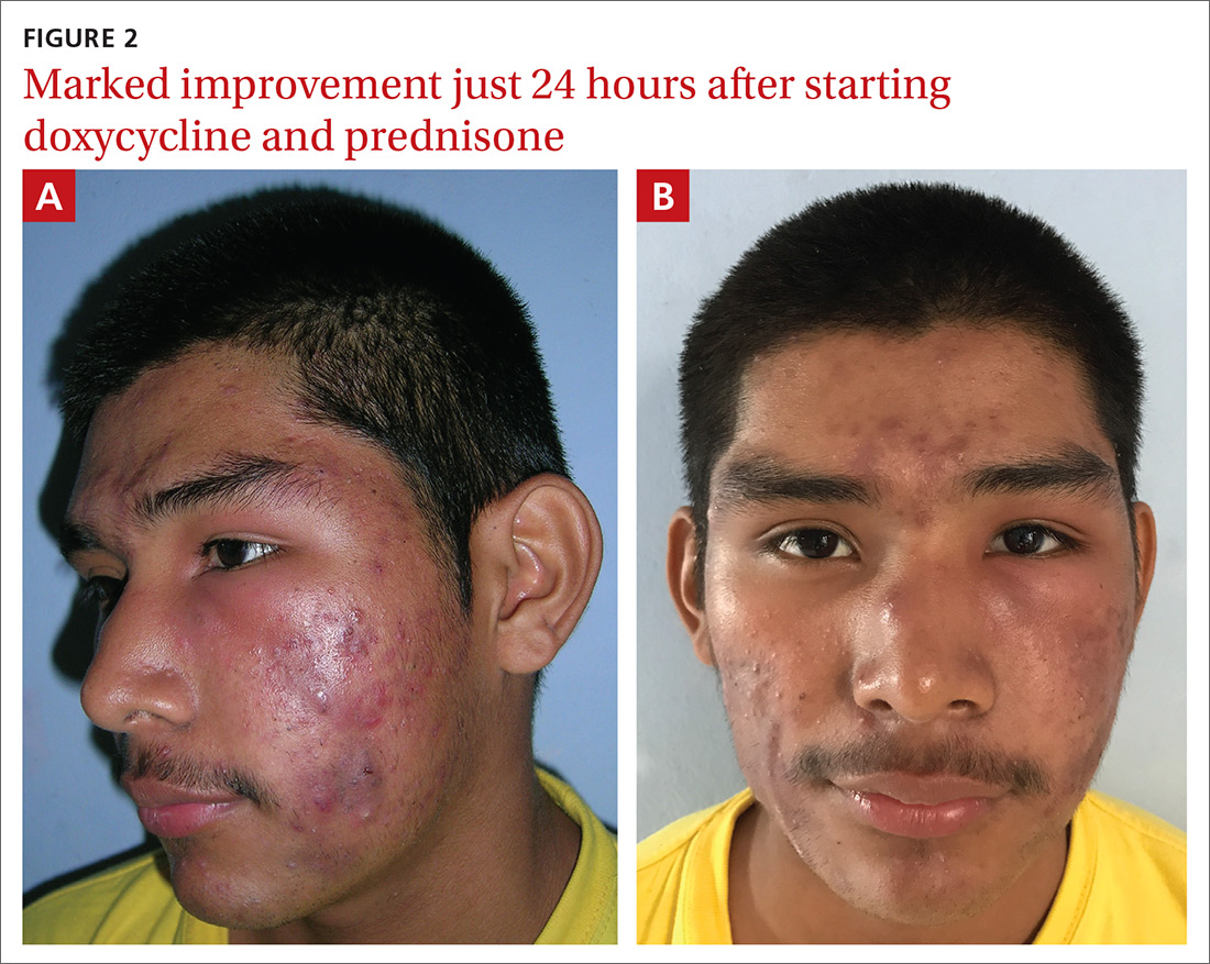 Facial Swelling In An Adolescent Mdedge Family Medicine