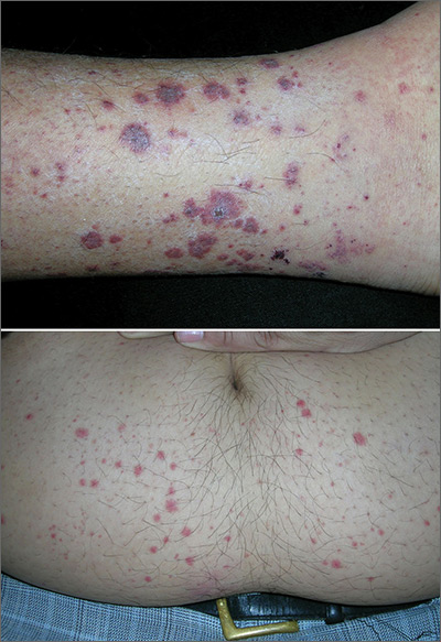 Rash on lower legs and abdomen