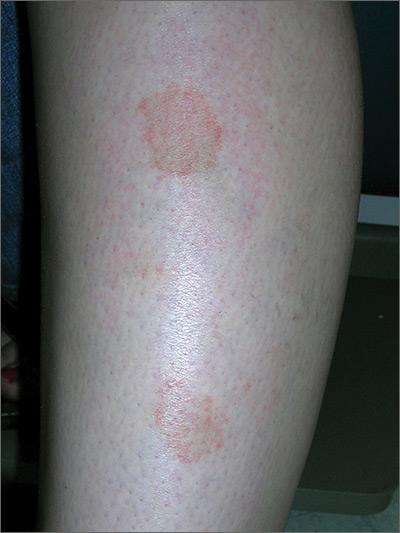 Marks On Lower Leg Mdedge Family Medicine