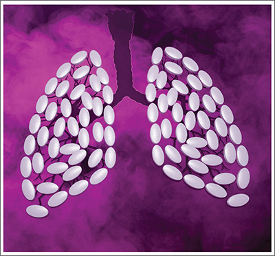 Lung filled with pills