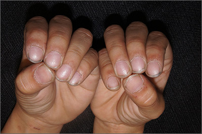 Pitting of fingernails