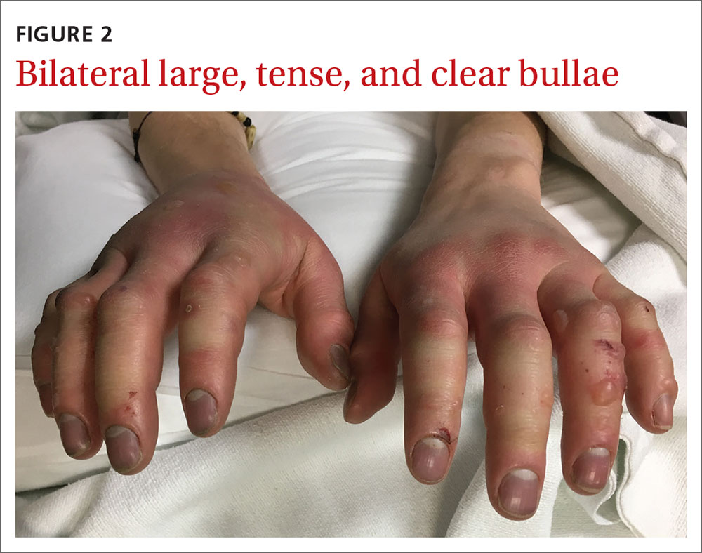 Bilateral large, tense, and clear bullae