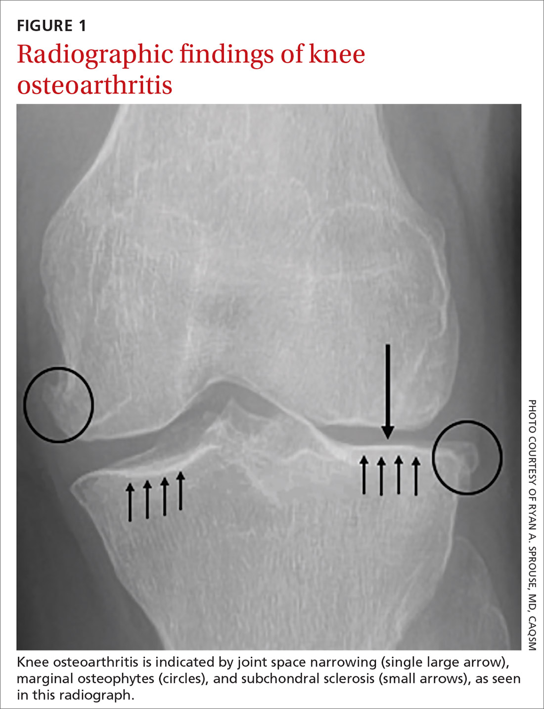 Radiographic findings of knee osteoarthritis