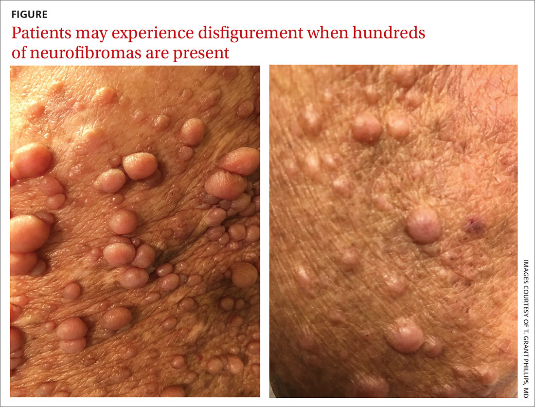 Patients may experience disfigurement when hundreds of neurofibromas are present