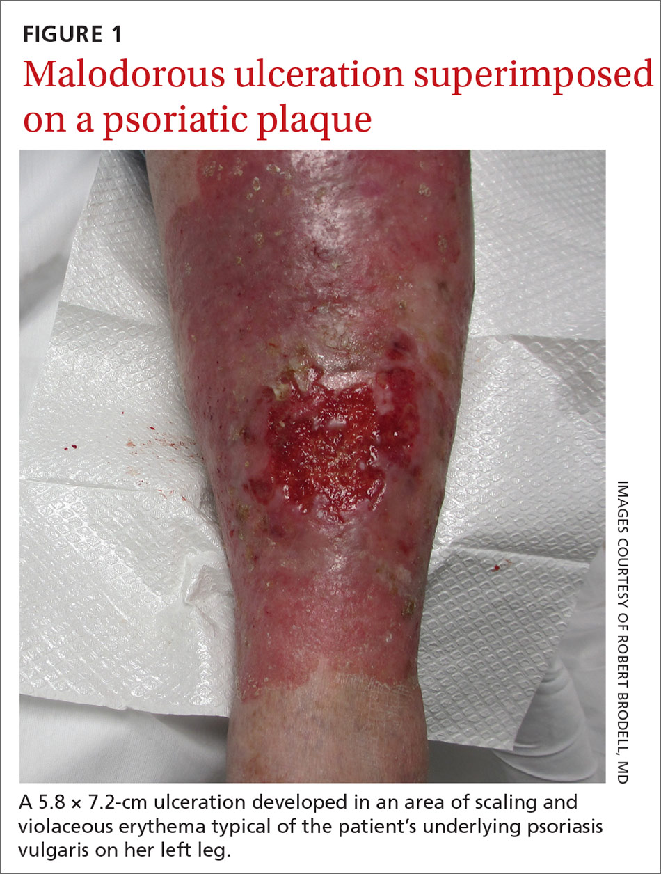 Malodorous ulceration superimposed on a psoriatic plaque
