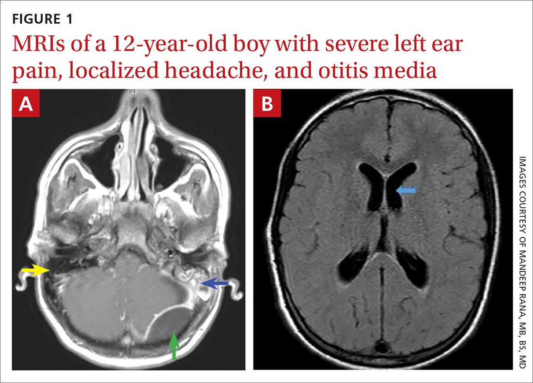 MRIs of a 12-year-old boy with severe left ear pain, localized headache, and otitis media