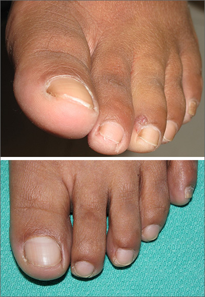 Purple toe lesion