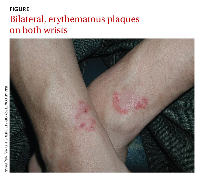 Bilateral, erythematous plaques on both wrists image