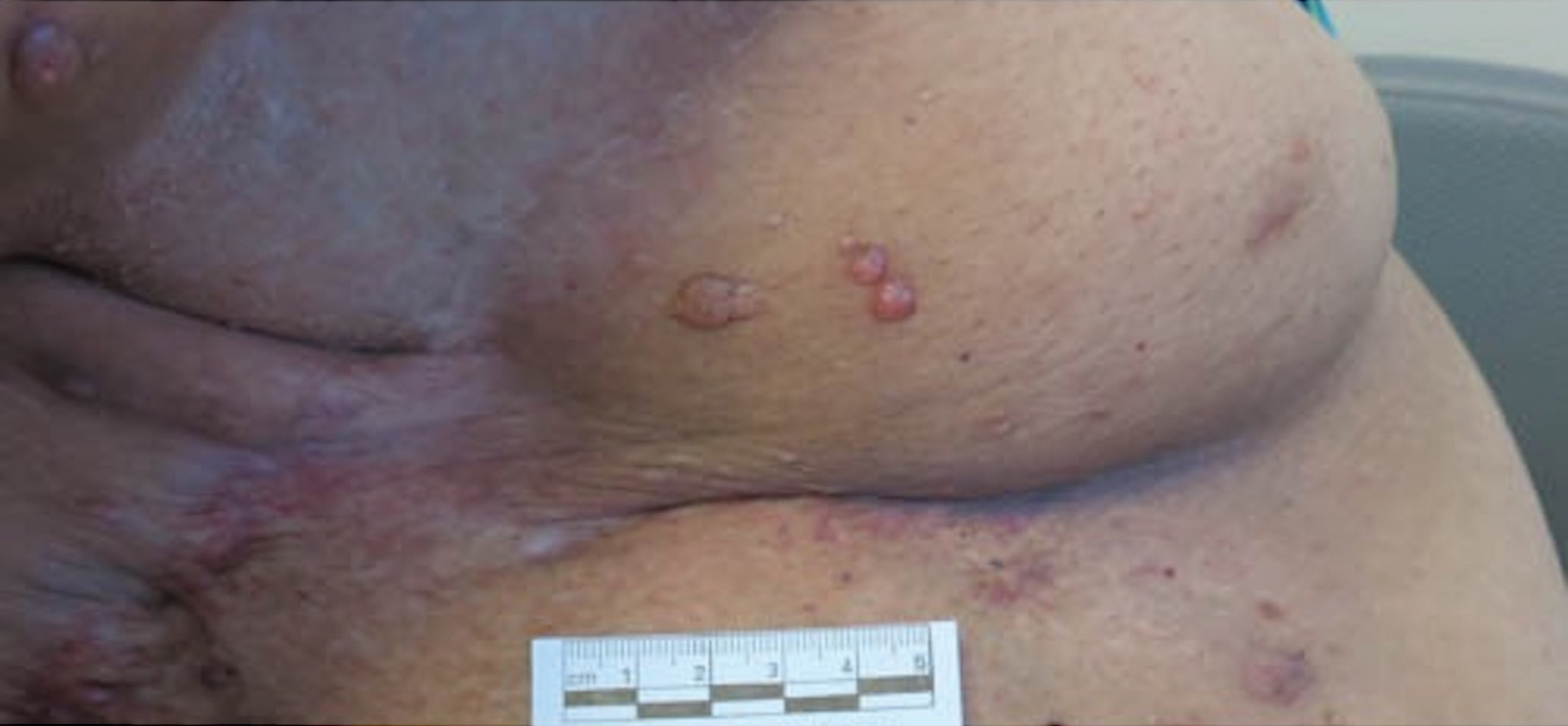 Pruritic Nodules On The Breast Mdedge Dermatology