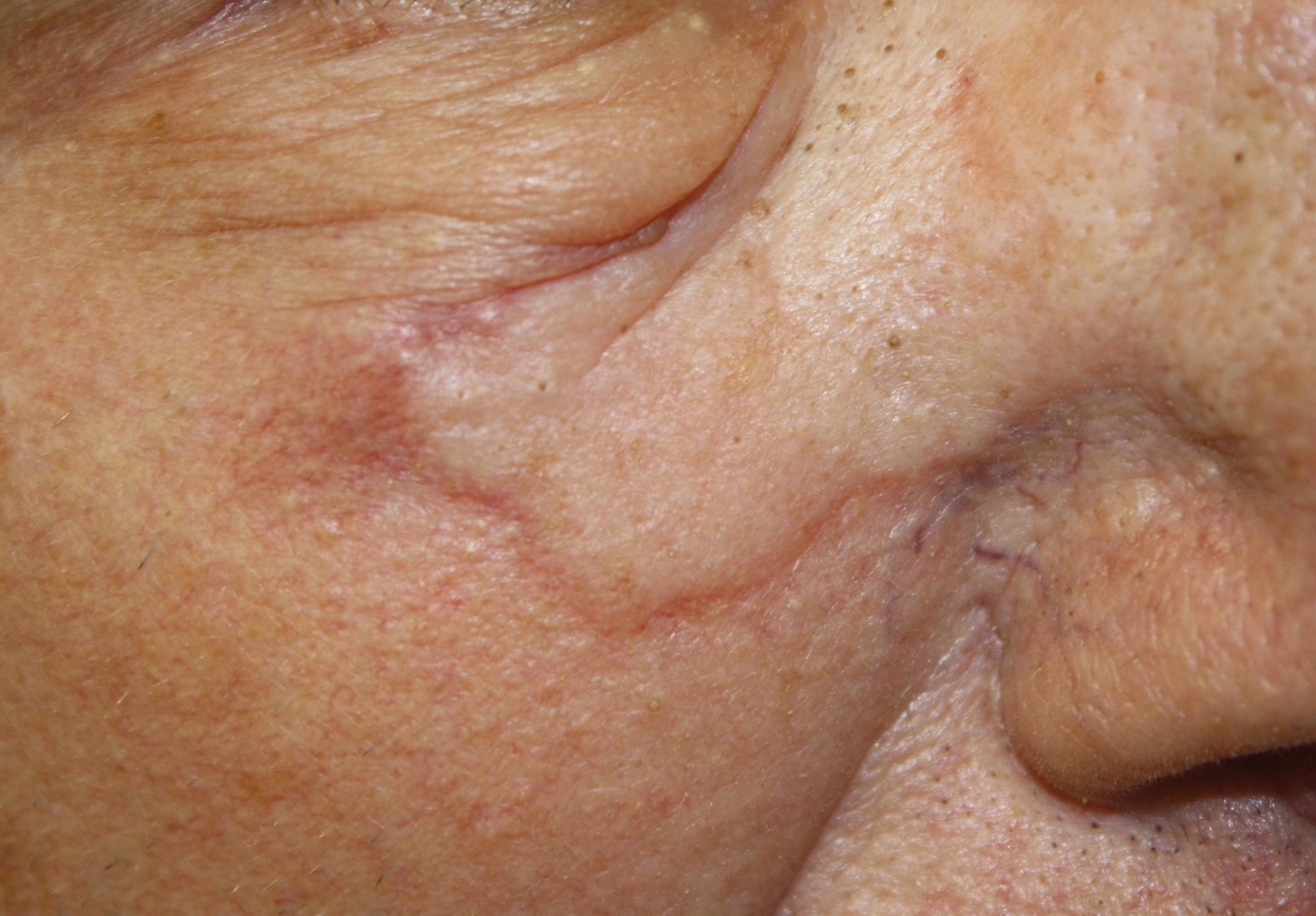 Angiosarcoma Imitating A Morpheaform Basal Cell Carcinoma Mdedge Dermatology