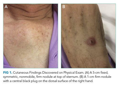 Cutaneous Findings Discovered on Physical Exam