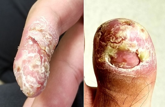 Scaling on finger and toe
