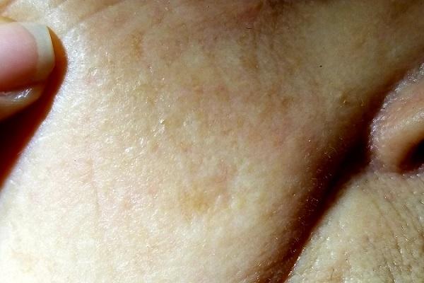 Cheek lesion