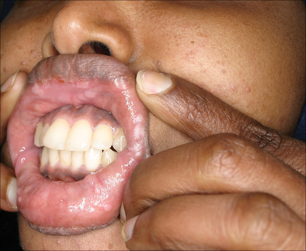 hpv in mouth painful)