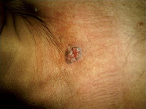Basal cell carcinoma at sternum