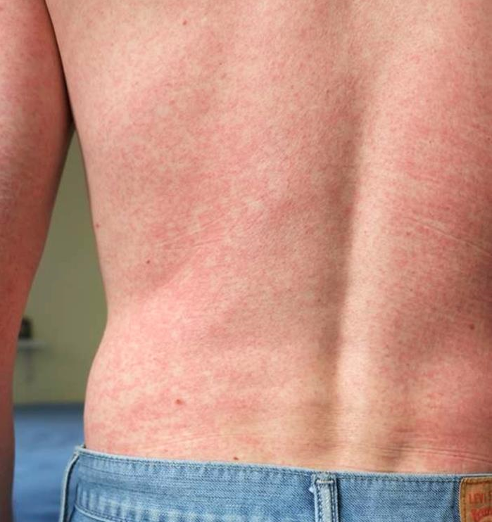 This image depicts a posterior view of a patient's back, captured in a clinical setting, upon presenting with this blotchy rash. After a diagnostic work-up, it was determined that the rash had been caused by the Zika virus.