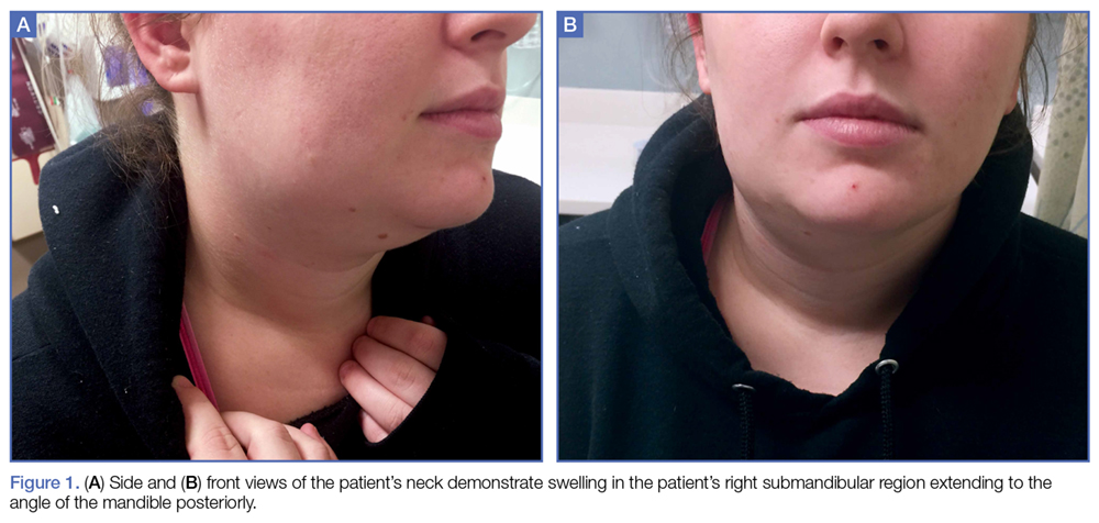 Acute Submandibular Sialadenitis | MDedge Emergency Medicine