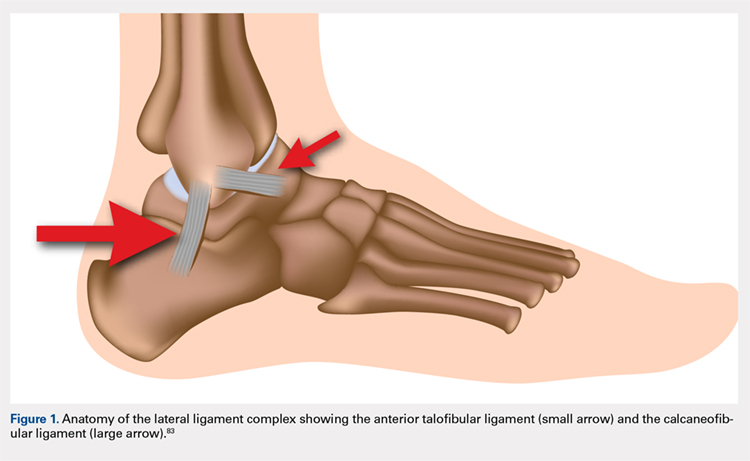 Anatomy of the lateral ligament complex showing the anterior talofibular ligament