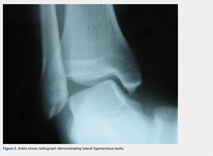 Ankle stress radiograph demonstrating lateral ligamentous laxity