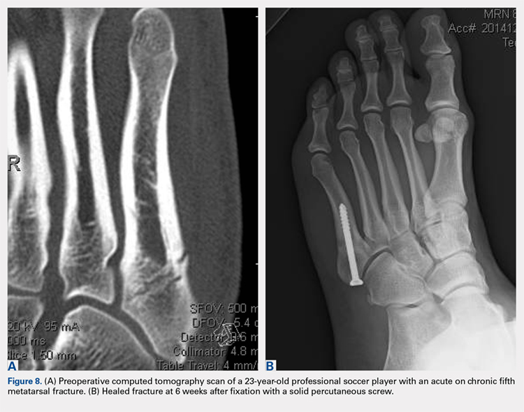 Preoperative computed tomography scan of a 23-year-old professional soccer player with an acute on chronic fifth metatarsal fracture