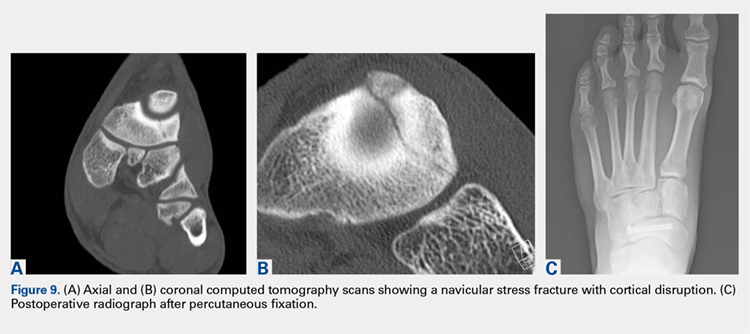 Axial and coronal computed tomography scans showing a navicular stress fracture with cortical disruption