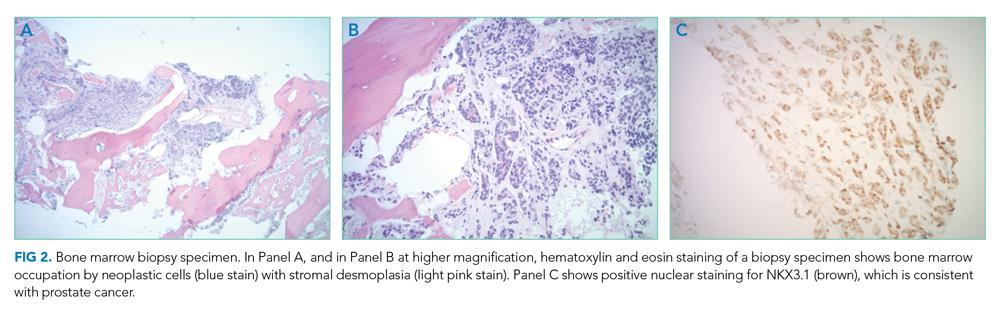Bone marrow biopsy specimen
