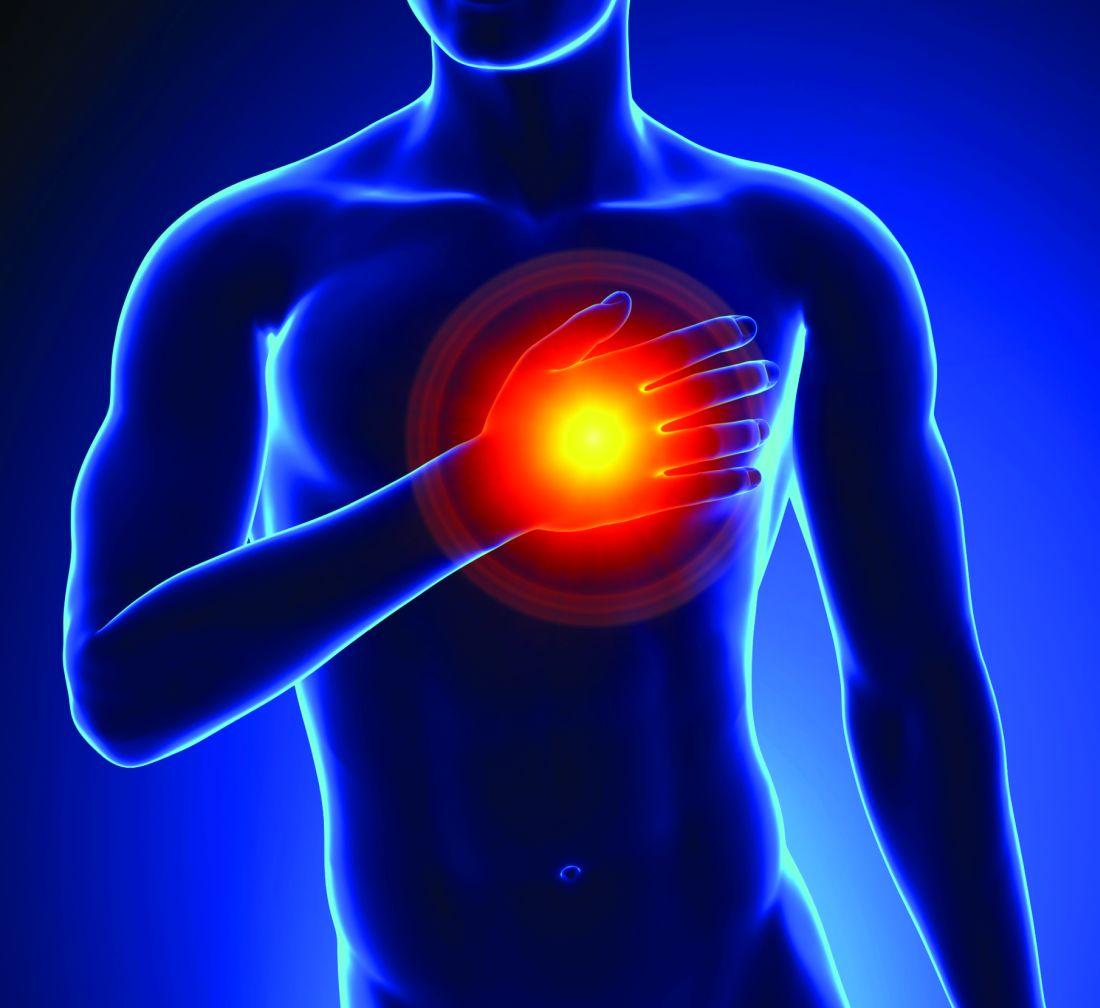 Mycardial Infarction / Myocardial Infarction Heart Attack