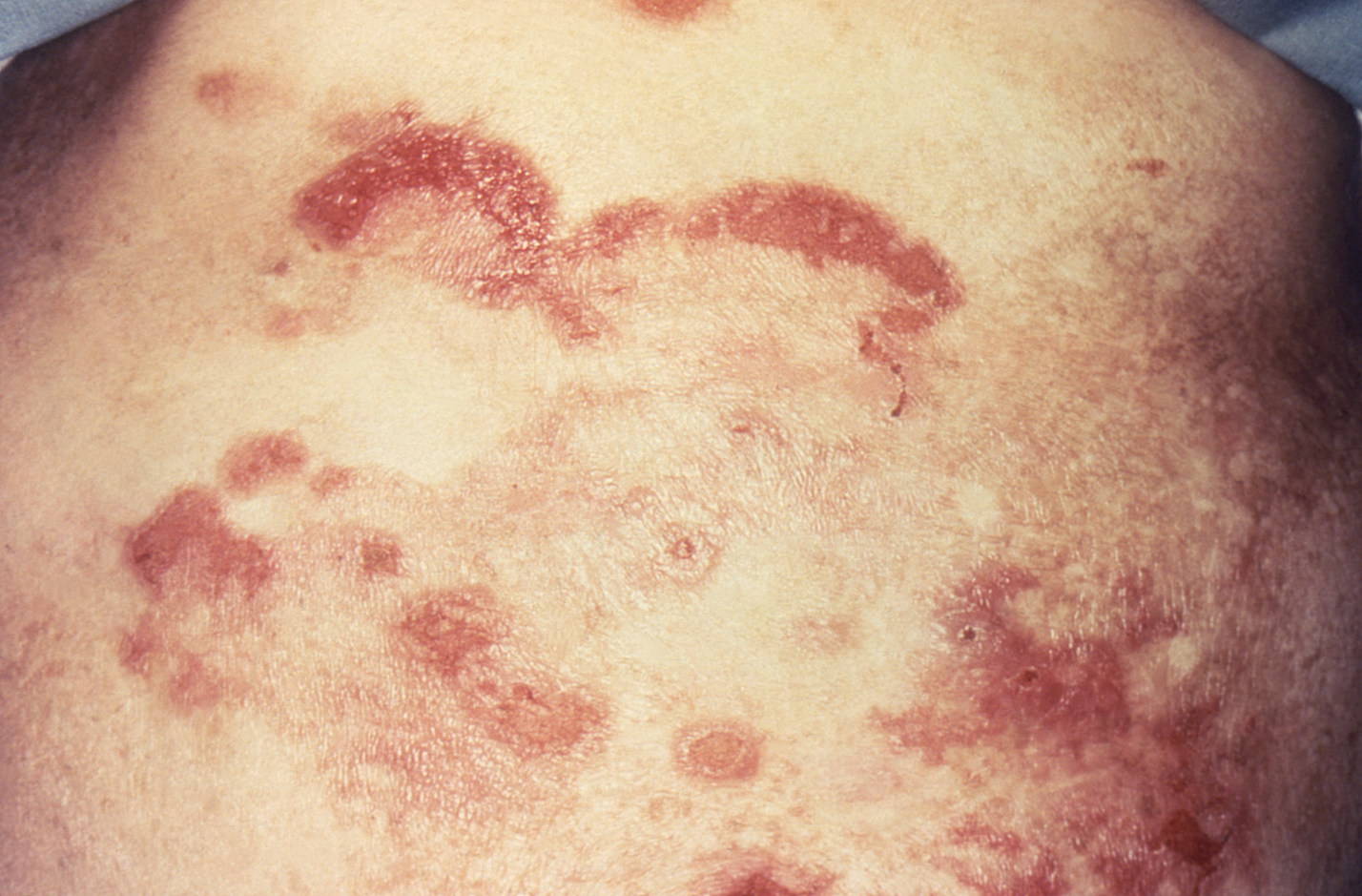 Cutaneous lesions associated with mycosis fungoides