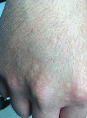 Urticarial papules on the right hand following an ice cube test.