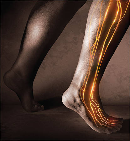 Causes Of Peripheral Neuropathy Diabetes And Beyond Mdedge Family Medicine