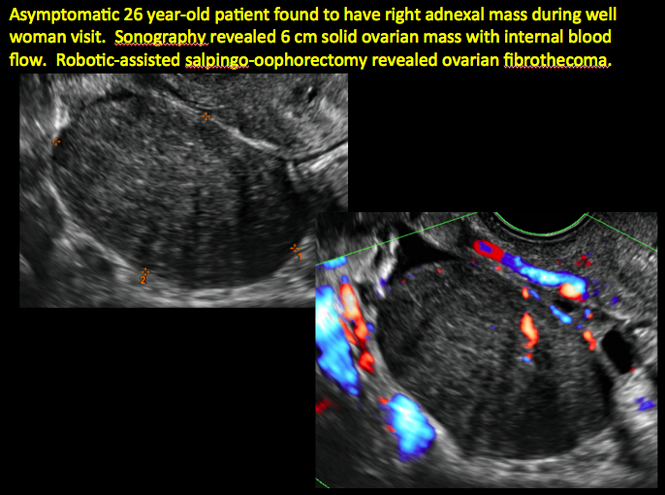 Imaging The Suspected Ovarian Malignancy 14 Cases Mdedge Obgyn