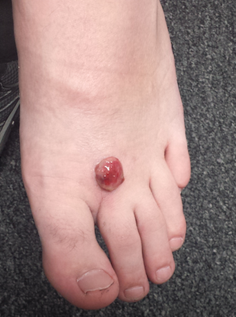 Attempt At Wart Removal Backfires Clinician Reviews