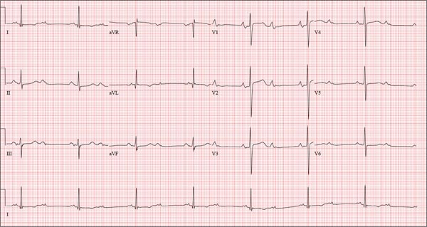 Bradycardia and a four-day history of lethargy prompts the transfer of this patient to the ED.