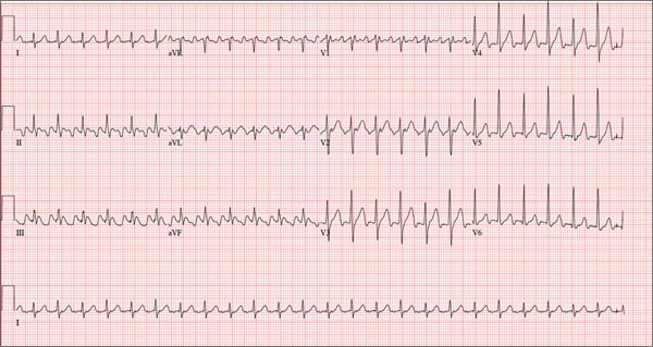 Woman Awakens With Rapid Heart Rate | Clinician Reviews