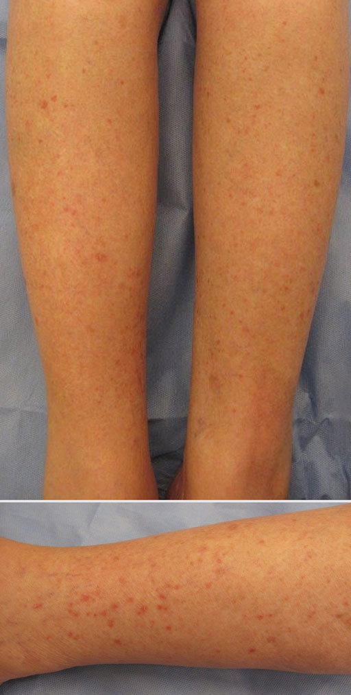 Erythematous Scaly Papules On The Shins And Calves Mdedge Dermatology