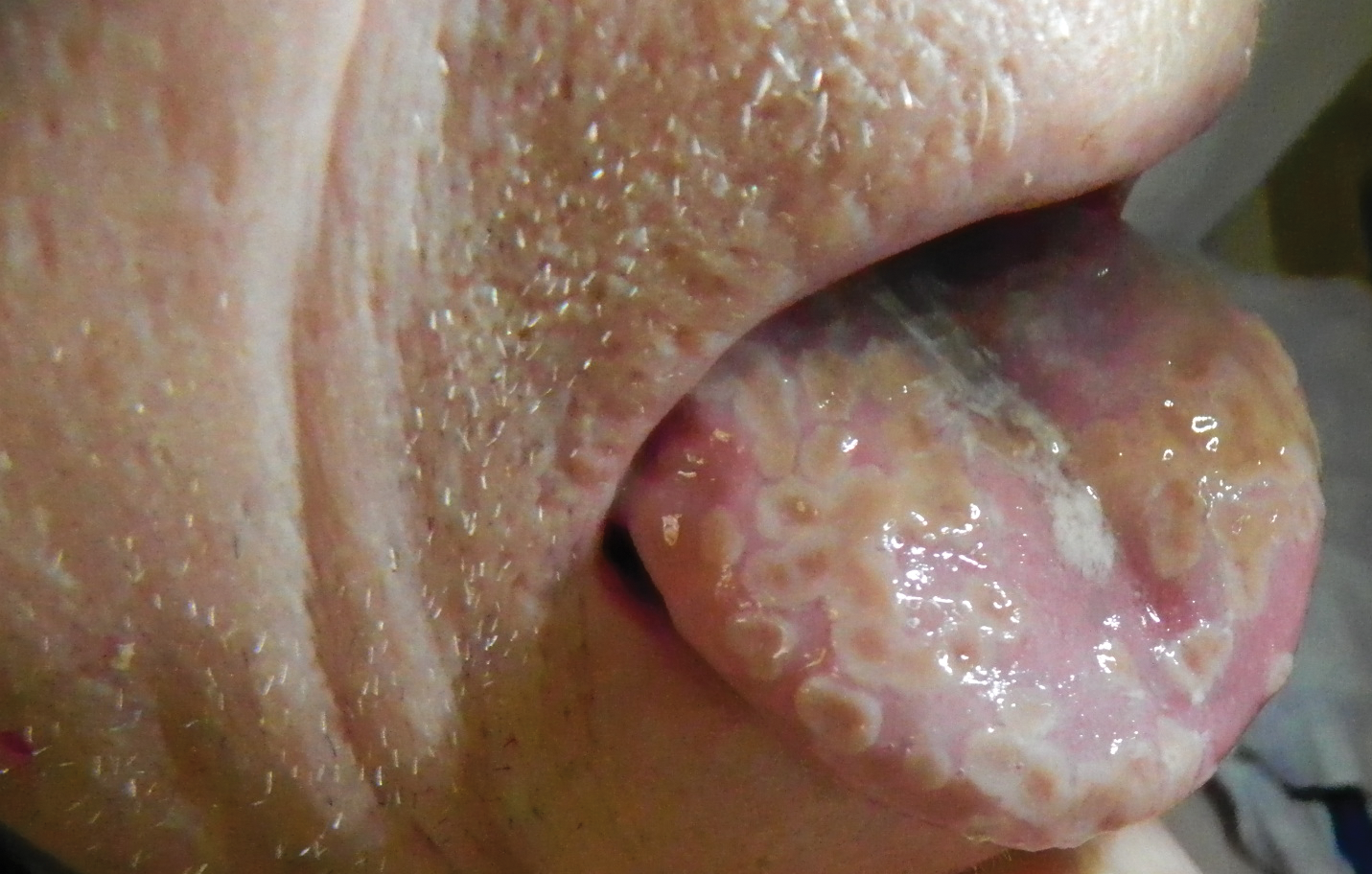 Painful Lesions On The Tongue Mdedge Dermatology