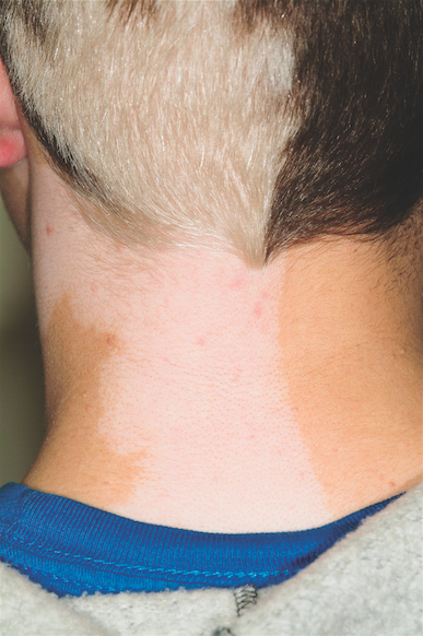 There is a complete loss of pigment in the scalp on the patient's left side, along with total loss of color in the skin on the adjacent part of the neck.