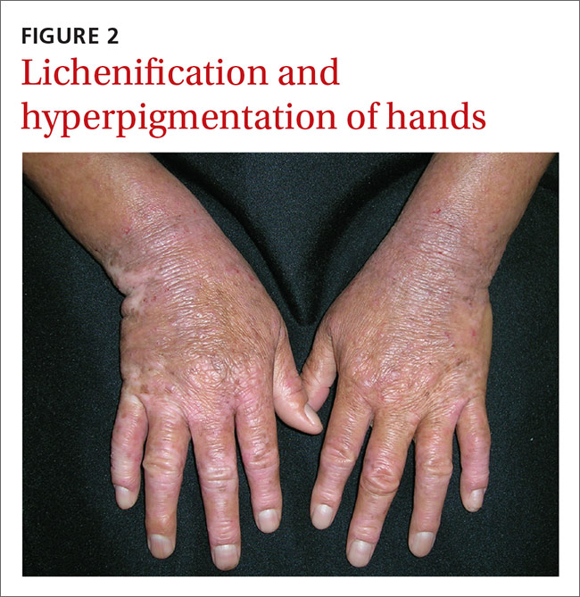 Lichenification and hyperpigmentation of hands image