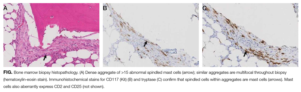 Bone marrow biopsy histopathology