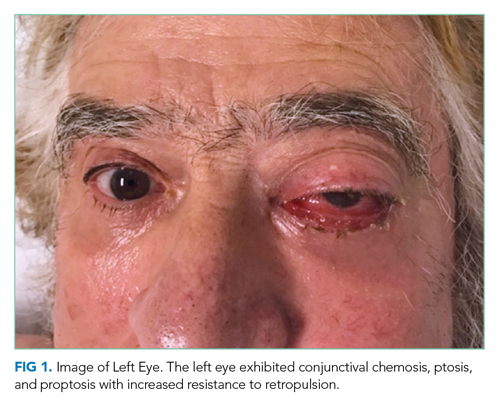The left eye exhibited conjunctival chemosis, ptosis, and proptosis with increased resistance to retropulsion