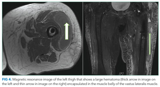 Magnetic resonance image of the left thigh that shows a large hematoma (thick arrow in image on the left and thin arrow in image on the right) encapsulated in the muscle belly of the vastus lateralis muscle