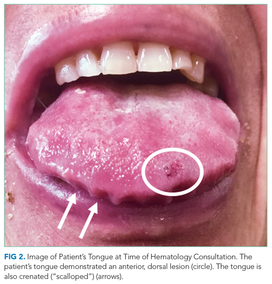 Image of Patient's Tongue at Time of Hematology Consultation