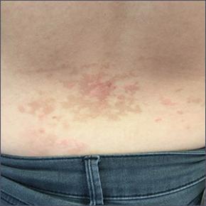 Pruritic rash